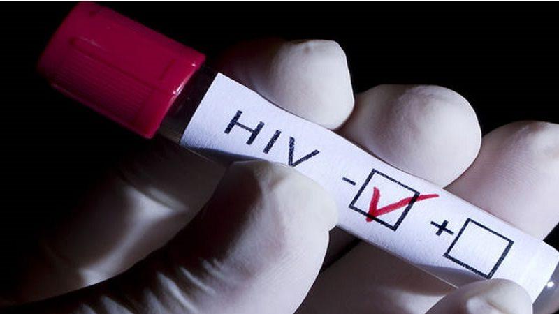 Seis cosas que debes saber para prevenir el contagio del VIH