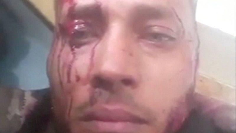Amnistía Internacional llama a esclarecer la muerte de Óscar Pérez en Venezuela