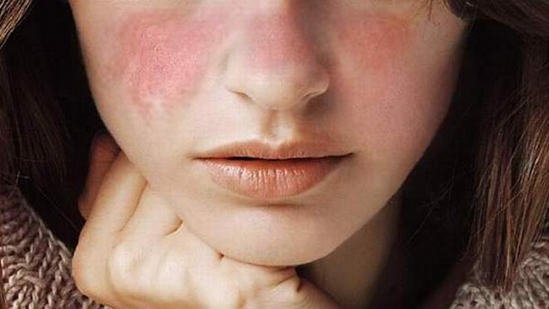 Lupus, una enfermedad autoinmune que afecta a 10 mujeres por cada hombre