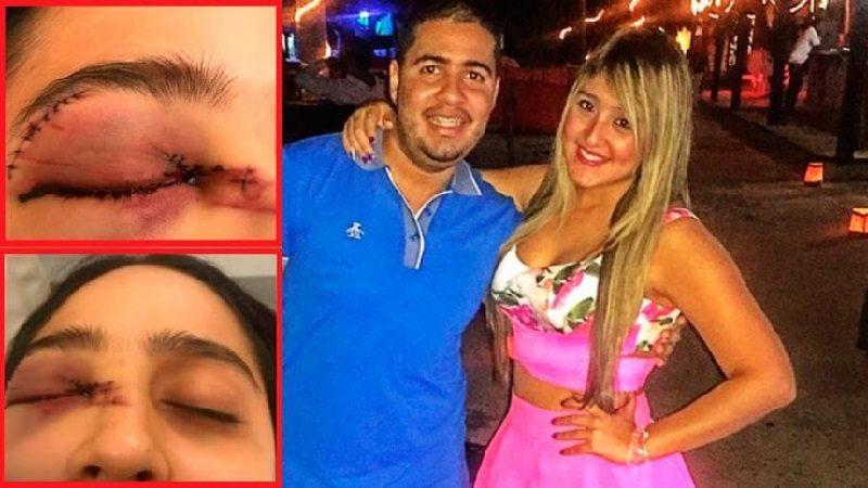 En Sabanilla, hombre propina brutal golpiza a su novia