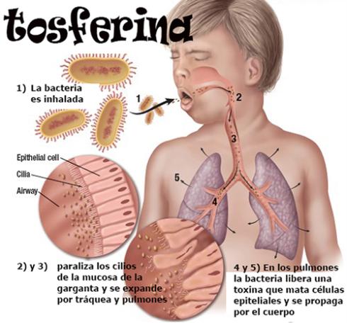 tosferina-infografc3ada