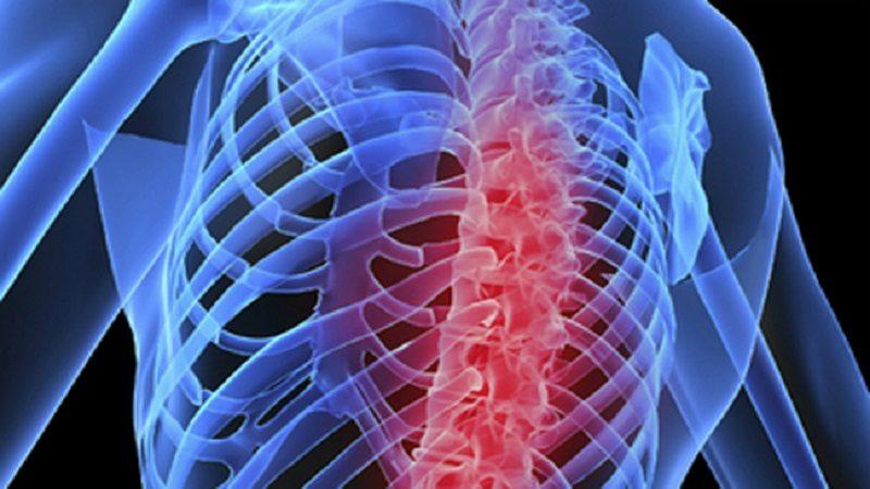 La Osteoporosis ya es considerada una enfermedad de salud pública