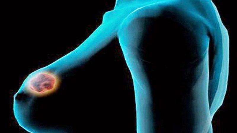 Seis posibles causas del cáncer de seno que no deben ser ignoradas