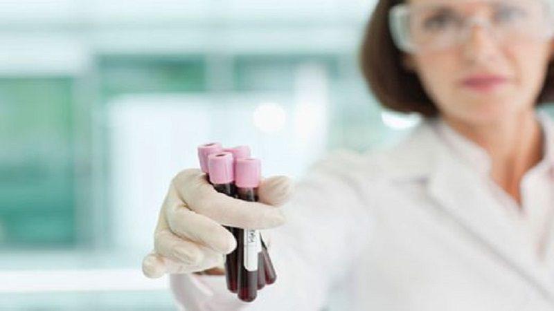 Las mujeres son más propensas a padecer la anemia, según expertos