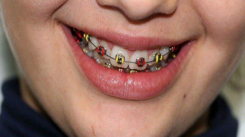 Masticación unilateral, un síndrome silencioso que causa modificaciones morfológicas