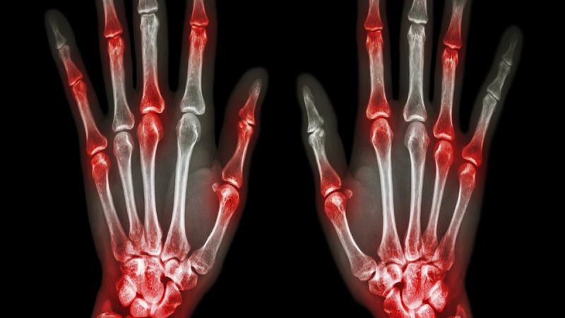 tamizaje de Artritis juvenil