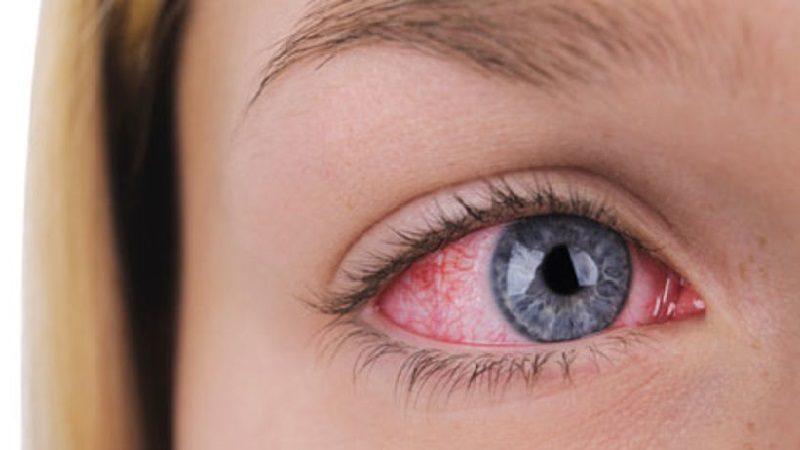 Conjuntivitis, una enfermedad que hace llorar.