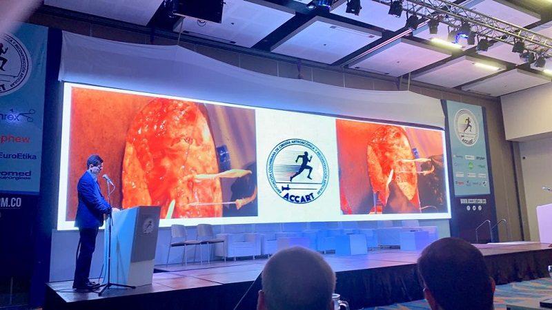 En Cartagena se realiza el II Congreso Internacional Artroscopia y Reconstrucción Articular